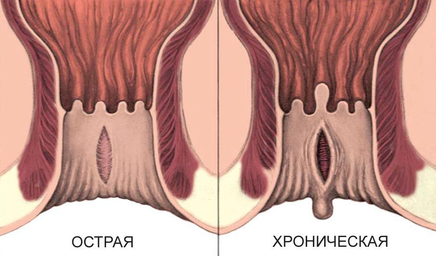 Как выглядит трещина ануса фото