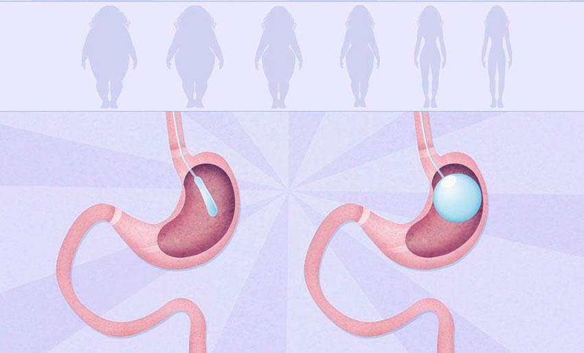 Лечение ожирения с помощью бариатрической хирургии